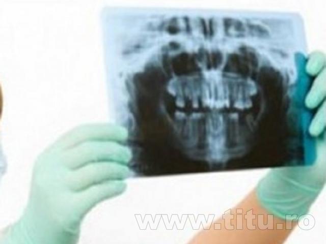 Radiologie dentara - CMI DR. Stefan Nicolae